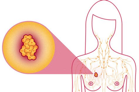 Thesis on triple negative breast cancer treatment